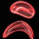 New Research May Ease Suffering of Sickle Cell Disease Patients
